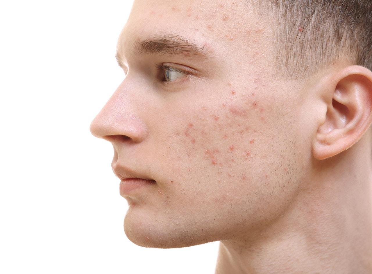 Rezultat slika za akne
